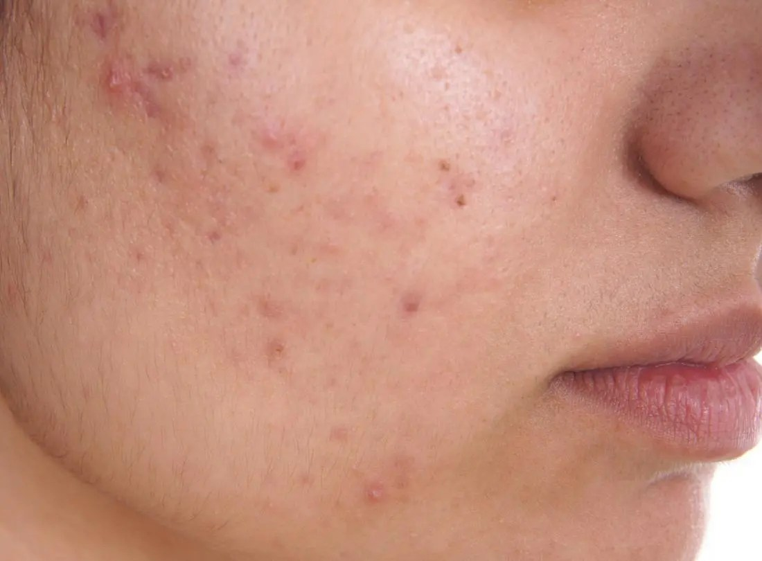 Acne: Causes, treatment, and tips