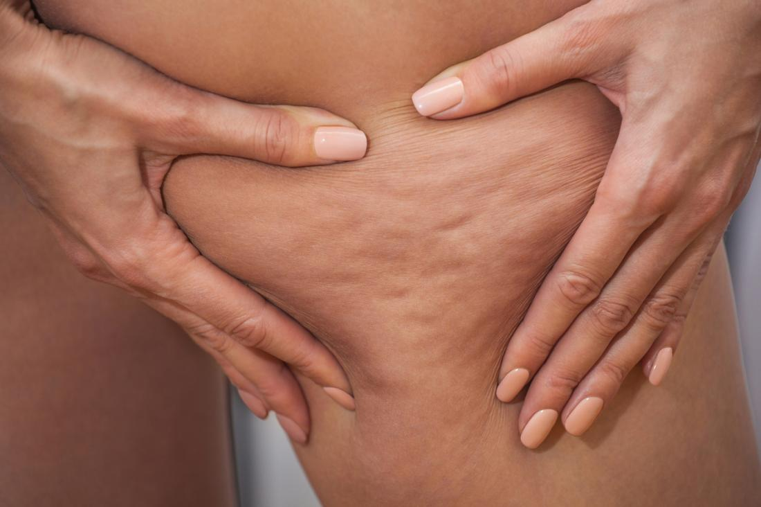 Cellulite meaning and definition
