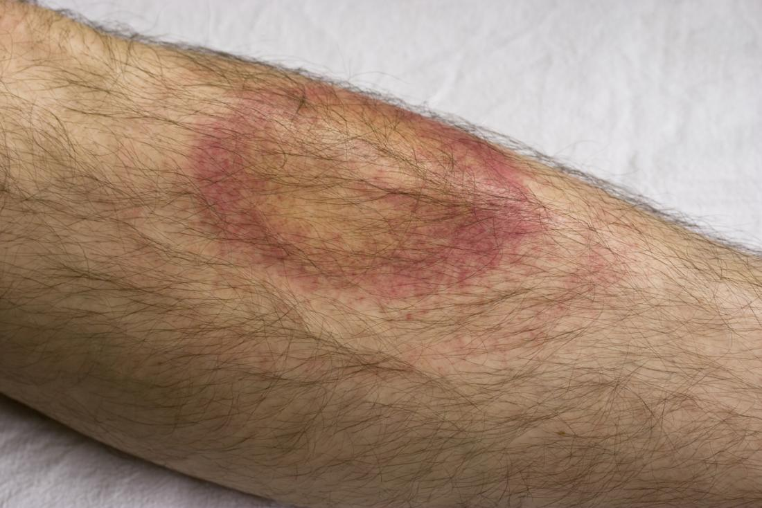 An erythema migrans (EM) rash should be reported to a doctor, as it may indicate Lyme disease.