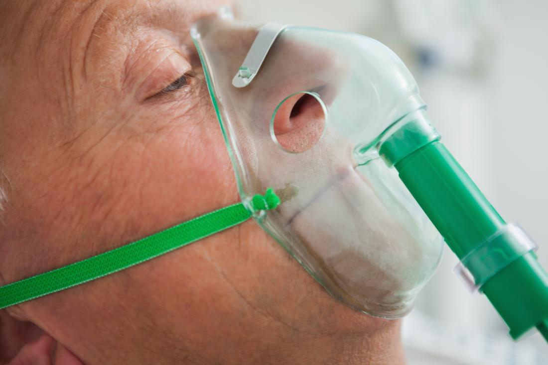 Pneumonia is a serious lung infection with a number of possible causes.