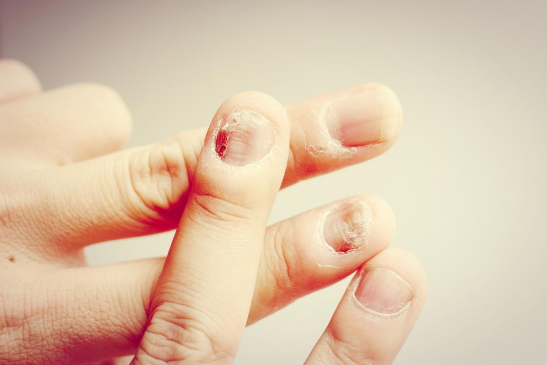 Nail Fungal Infection Causes Treatment And Symptoms