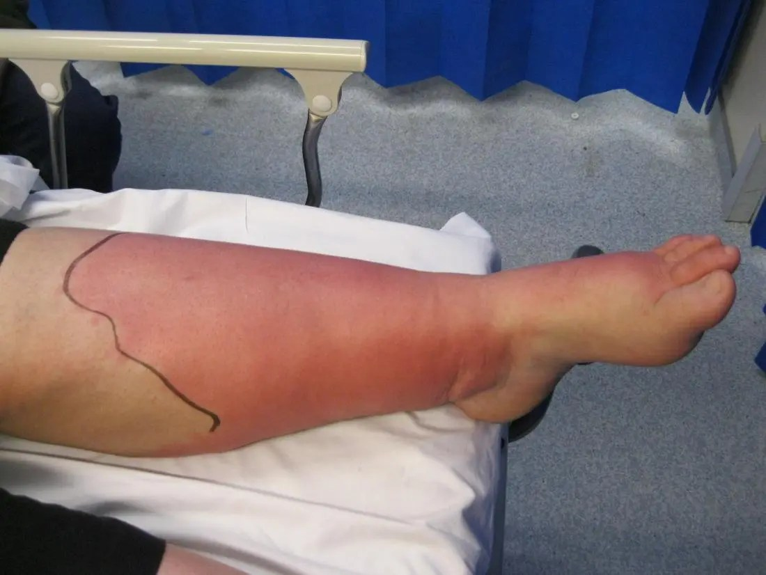 Cellulitis on the leg. Image credit: John Campbell, 2018