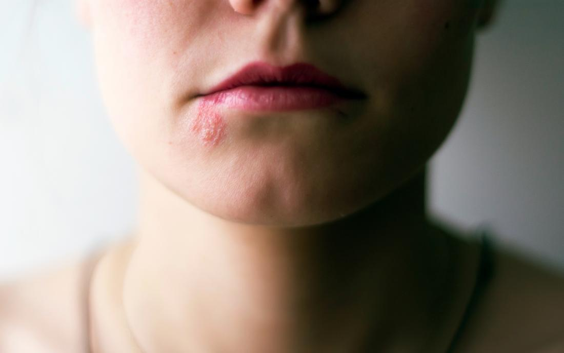 a woman with shingles on her lip.
