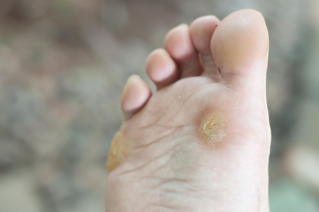 Warts on hands and feet causes. - Warts on hands and feet causes