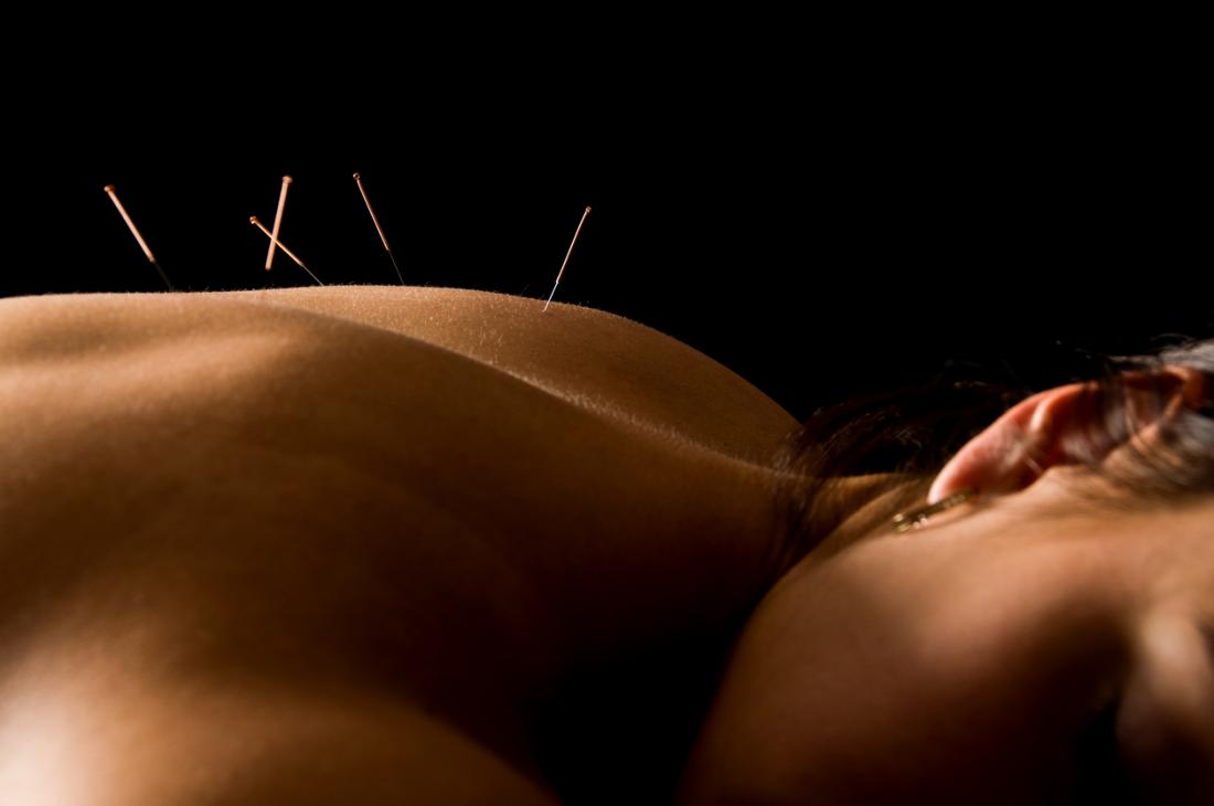 Acupuncture involves inserting needles at certain points of the body.