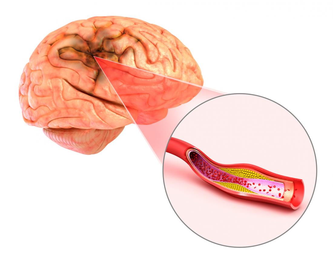 can vegan diets cure aneurysm