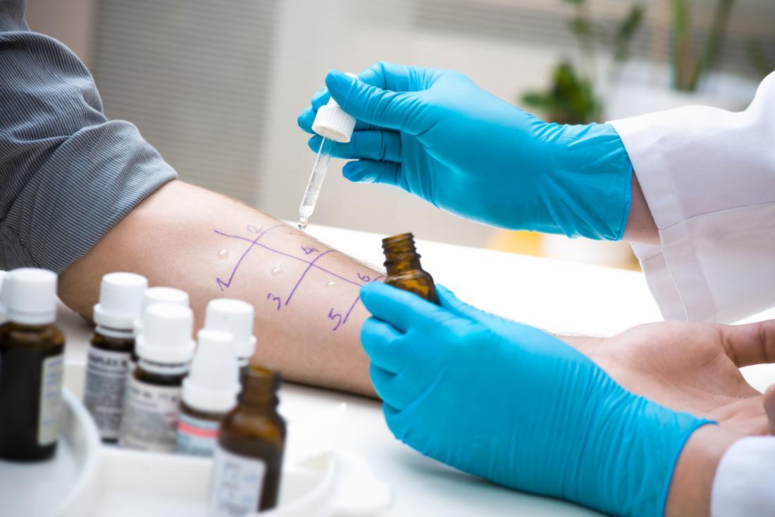 [Hives allergy testing]