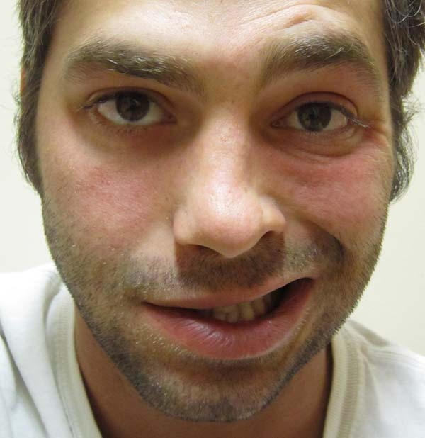 A patient with Bell's palsy on the left side