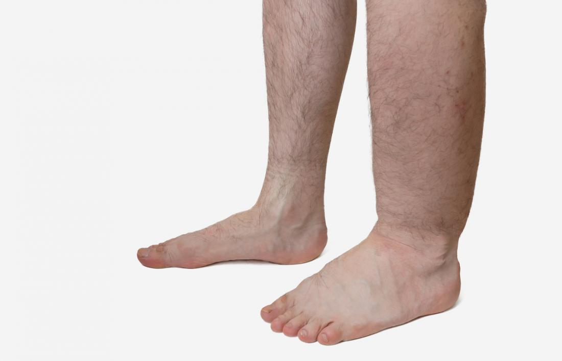 Edema, or water retention, causes a part of the body to swell.