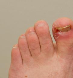 an ingrown toenail can be painful  [ 1100 x 734 Pixel ]