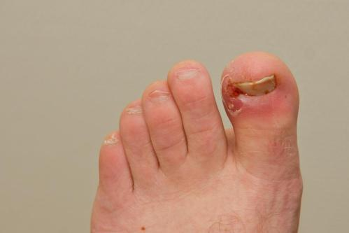 small resolution of an ingrown toenail can be painful