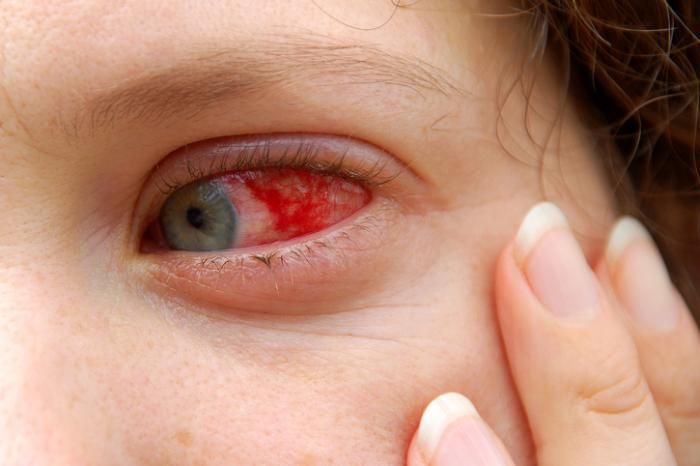 [red eye a sign of uveitis]