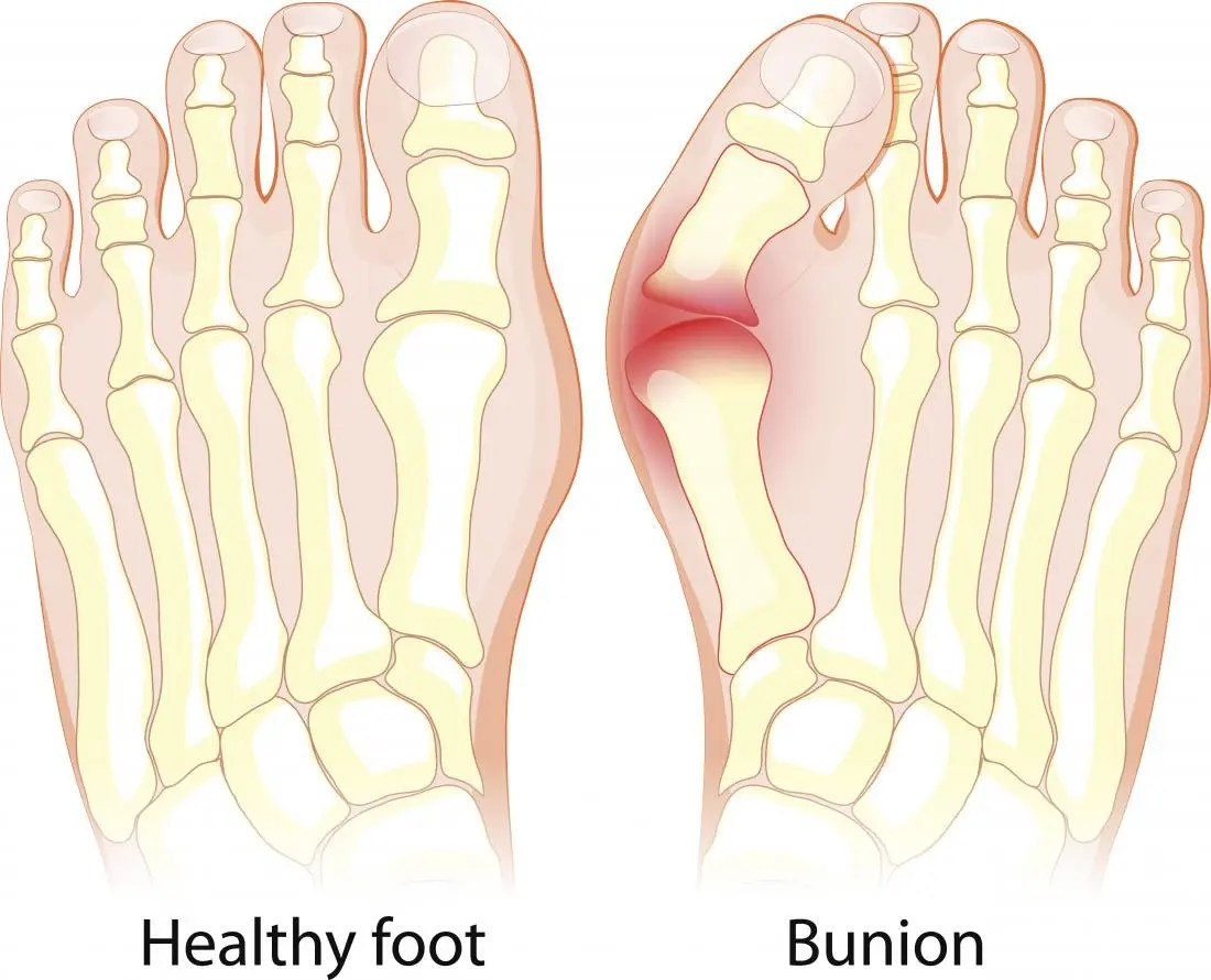 hight resolution of bunion diagram