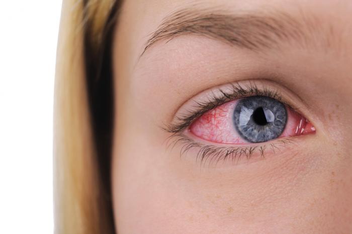충혈된 눈