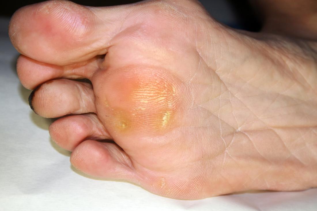 how to treat hard skin on feet