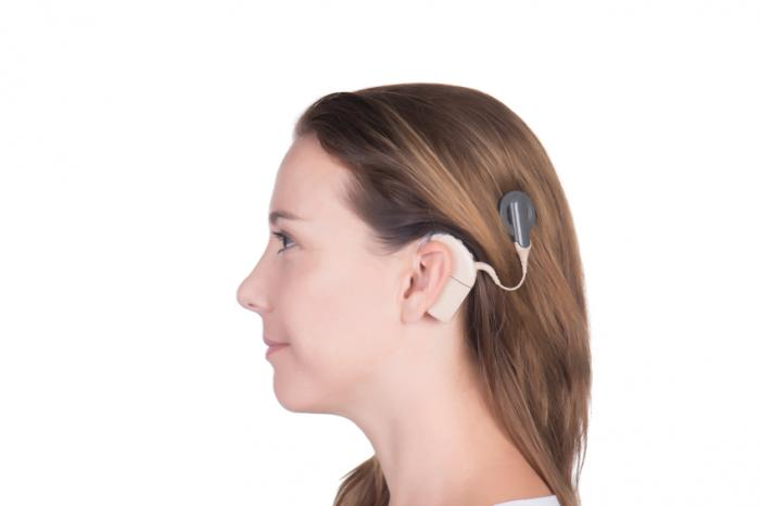 [cochlear implant]