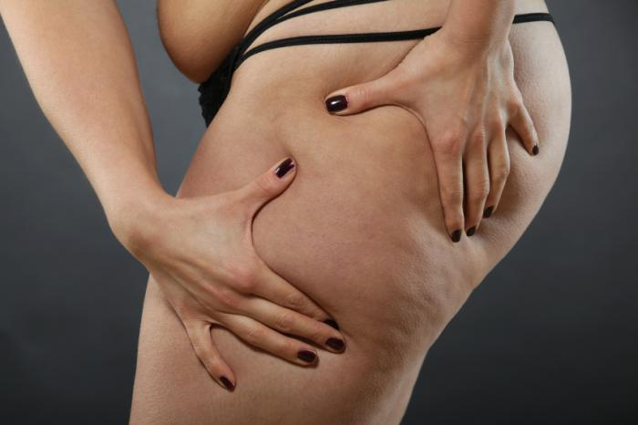 Liposuction Uses Benefits And Risks