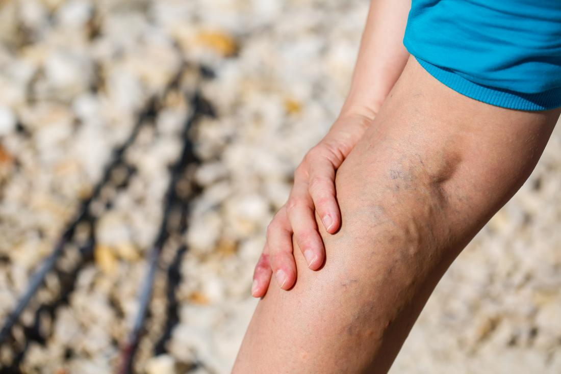 People with varicose veins are more likely to develop varicose eczema.
