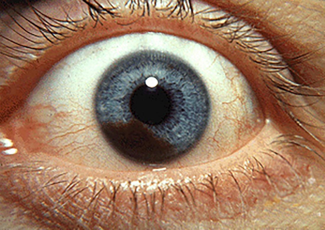 Eye Melanoma Symptoms Causes And Risk Factors