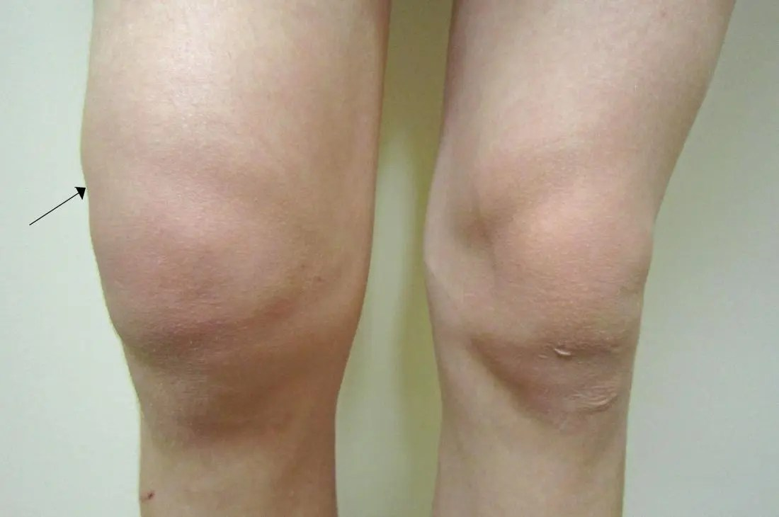 Water On The Knee Knee Effusion Treatment Symptoms And Causes