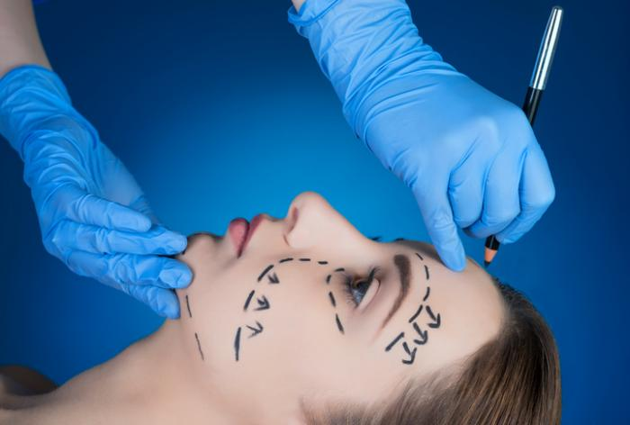 Facelift: What to expect and possible complications