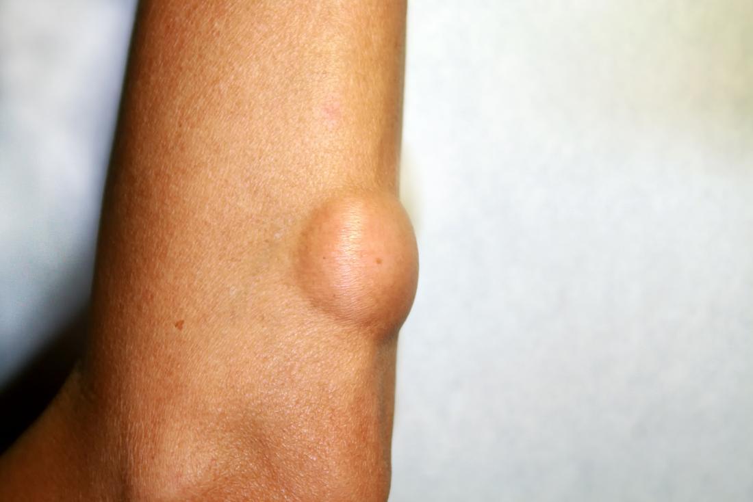 benign cancer lump)
