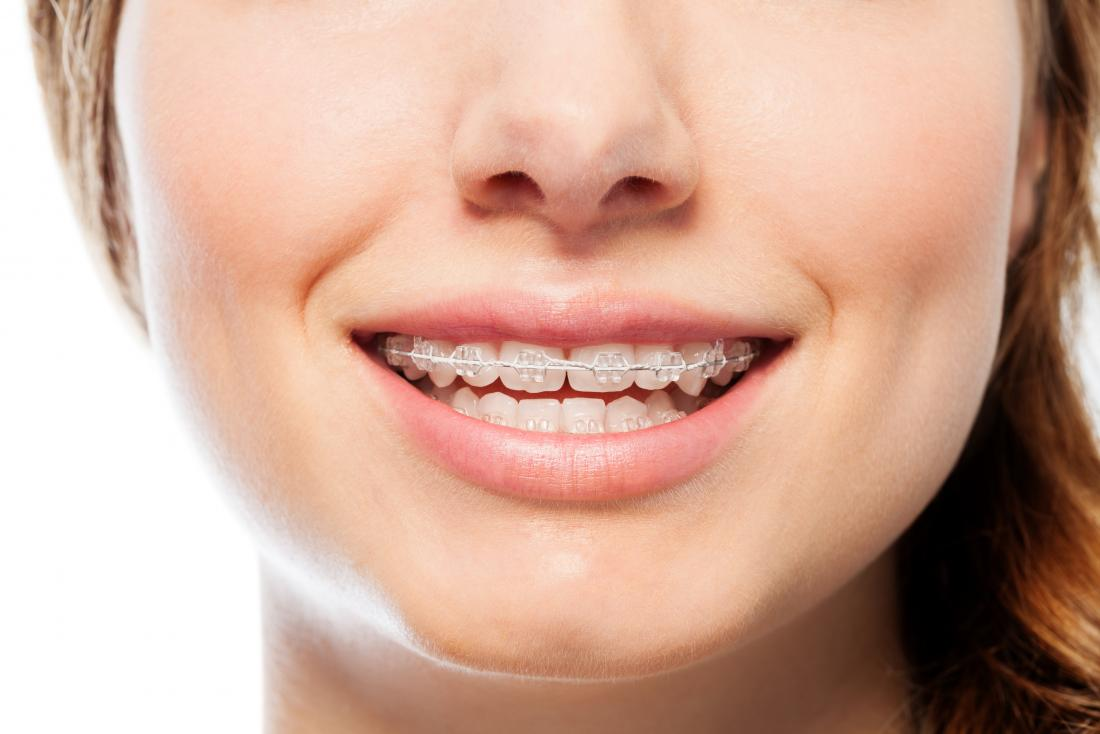 Orthodontics: Maloccclusion, other problems, and starting ... on jaw surgery procedures, jaw suspension, jaw diagram, jaw splint, jaw wired shut, jaw parts, jaw socket, jaw clutch,