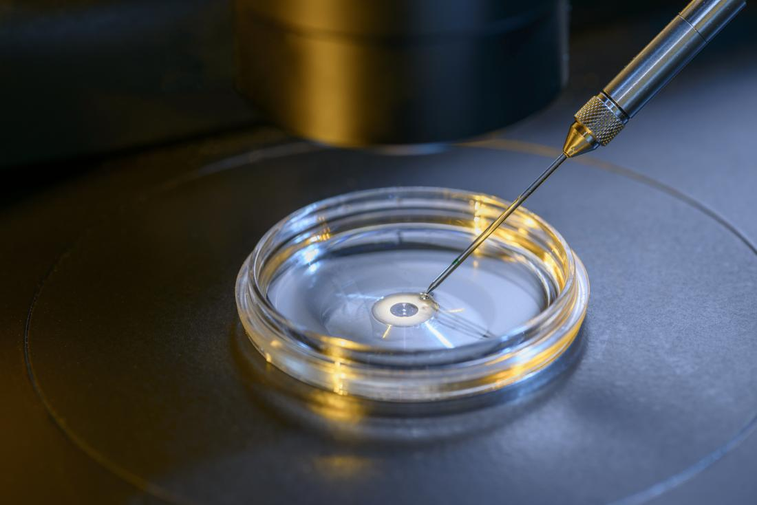 IVF involves fertilizing the egg in a laboratory dish.