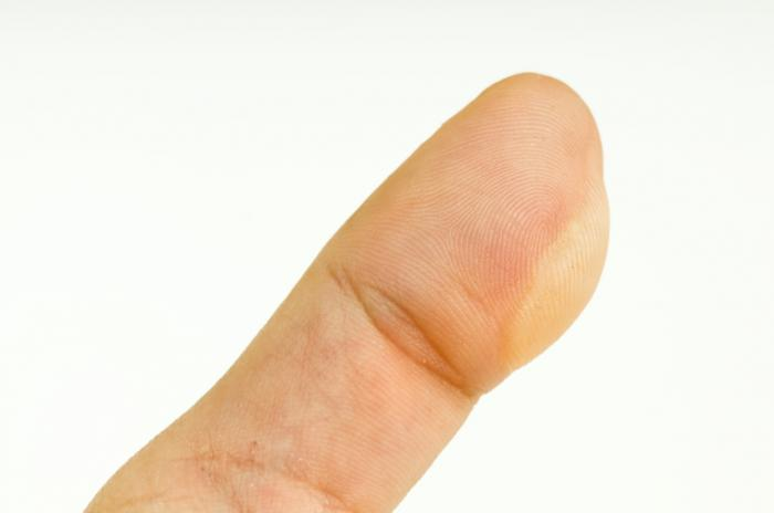 A blister on a finger.