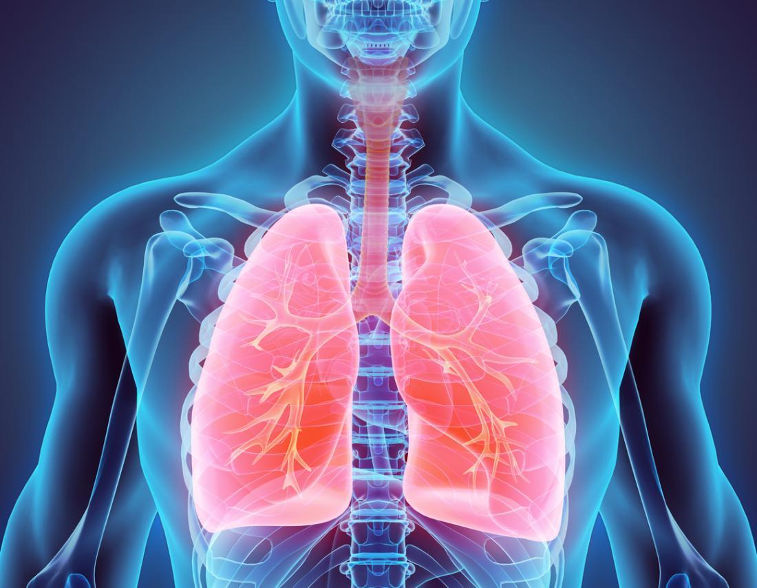 Air sacs lung ARDS