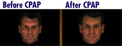 Before and After CPAP images