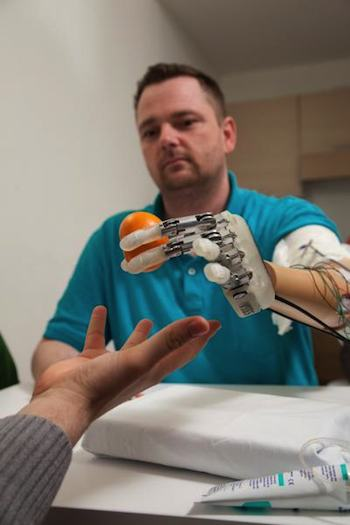 Dennis Aabo Sørensen using a sensory-enhanced prosthetic hand