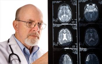 A doctor examining brain scans