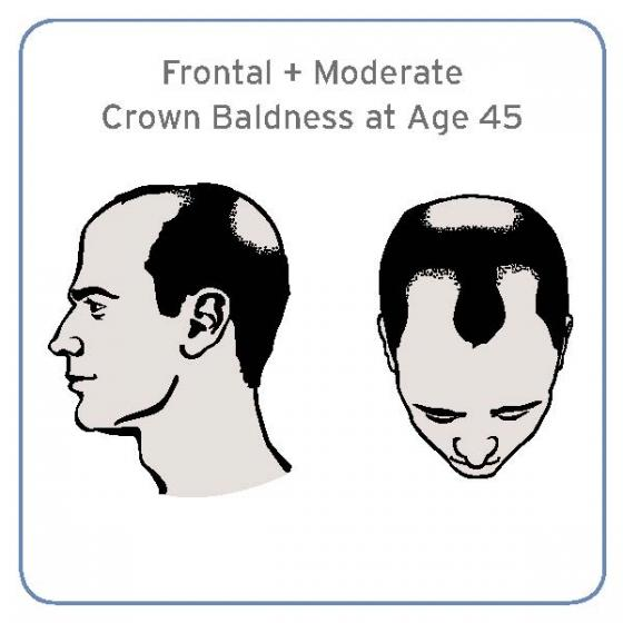 illustration of frontal and moderate crown baldness