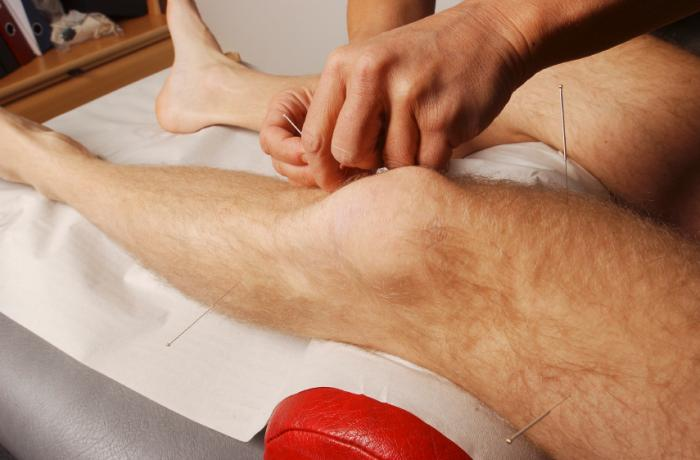 patient receiving acupuncture to the knee