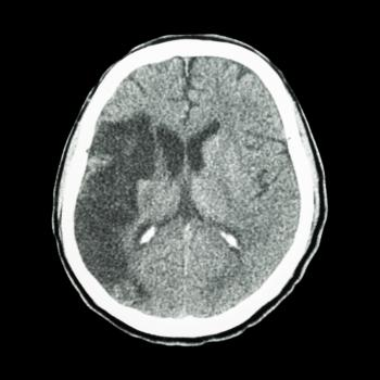 A CT scan of ischemic stroke