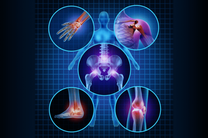 areas of painful joints
