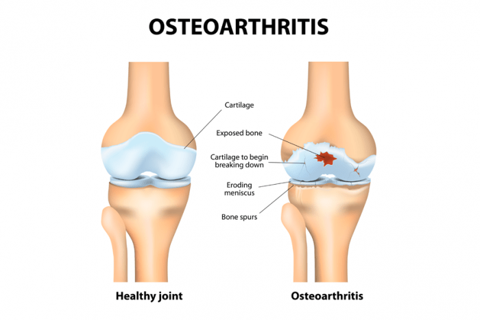 comparison of healthy joint and joint with osteoarthritis