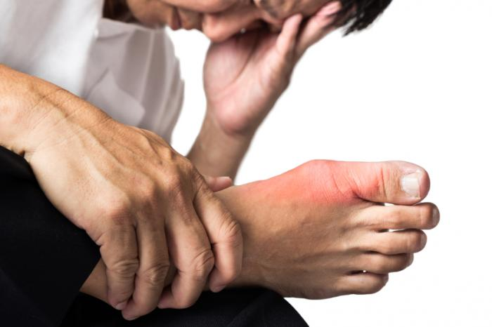 man with severe gout