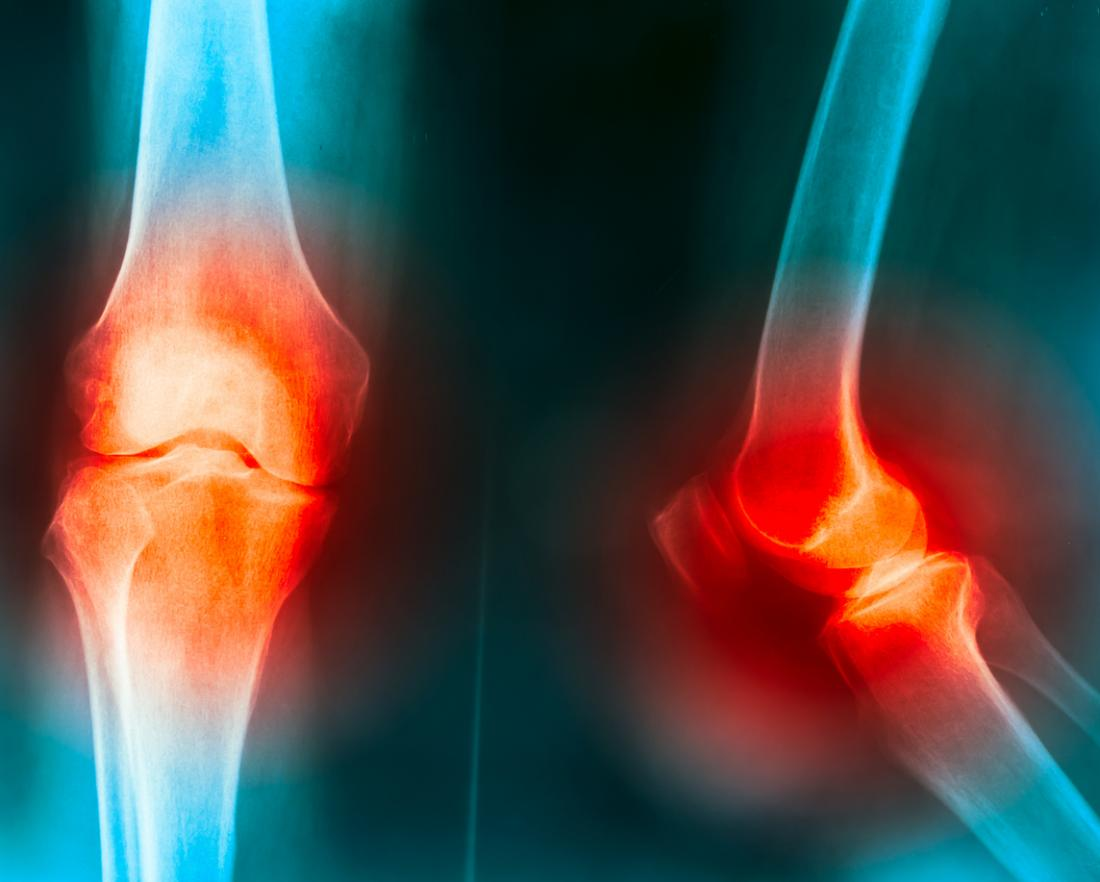 Knee pain joint X-ray