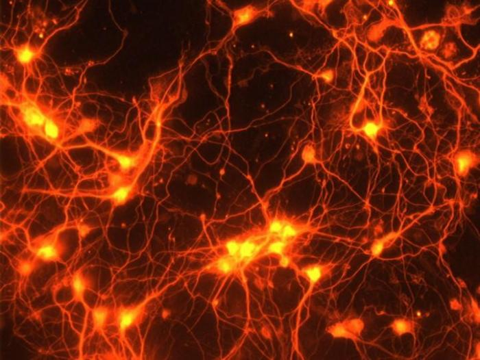 neurons with new connections
