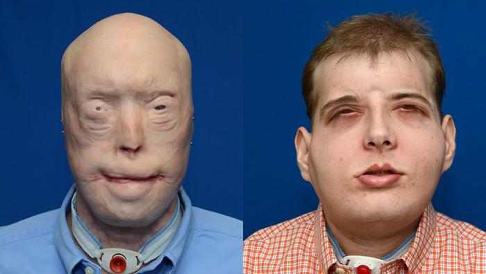 [Patrick Hardison before and after his face transplant]