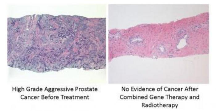prostate cancer gene therapy
