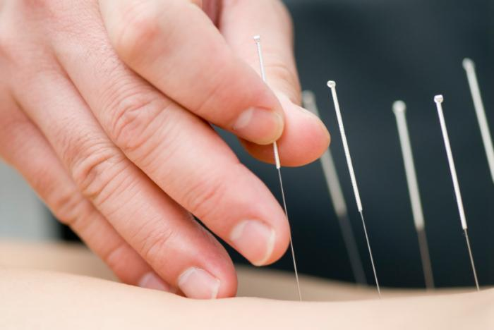 [Acupuncture]