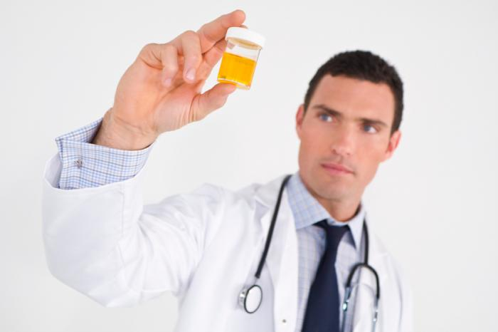 Doctor holding up urine sample