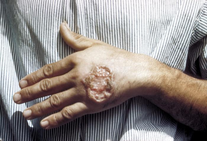 [Leishmaniasis on the hand of Central American adult]