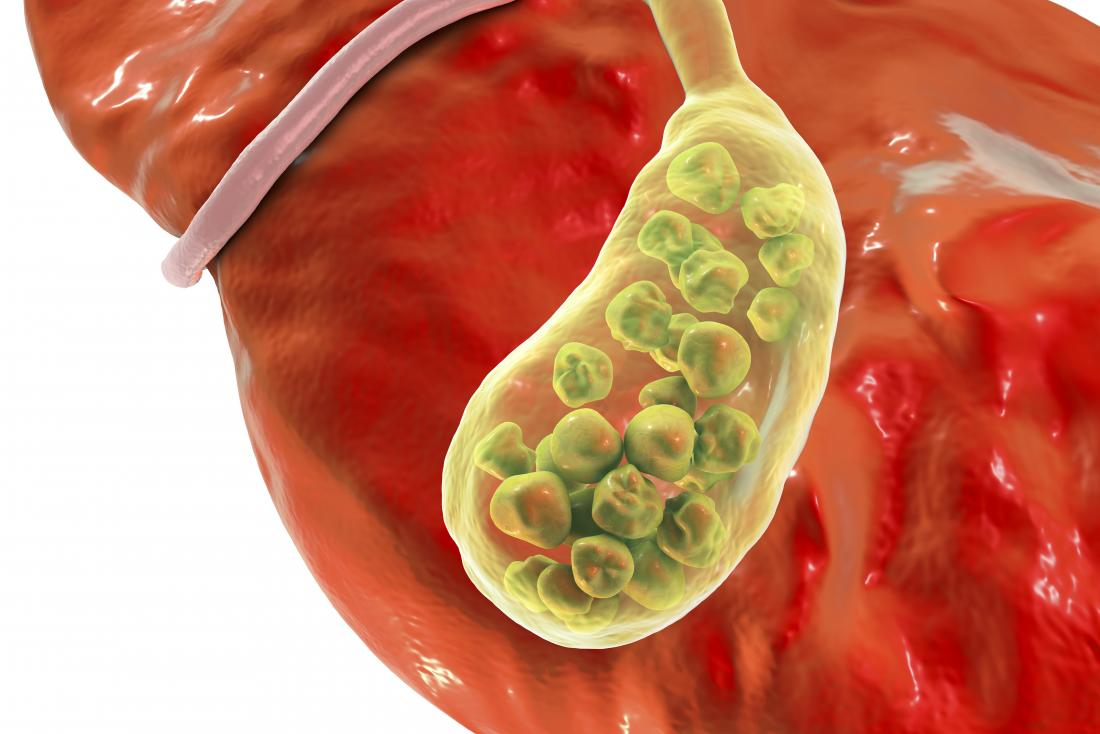 Gall bladder infection