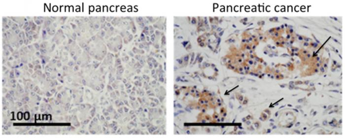 Normal pancreas and pancreatic cancer cells
