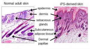 Normal and iPS skin