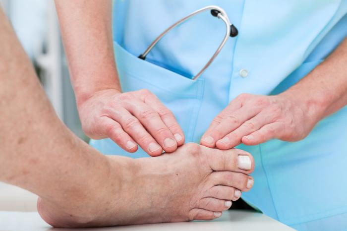 A bunion is examined by a doctor.
